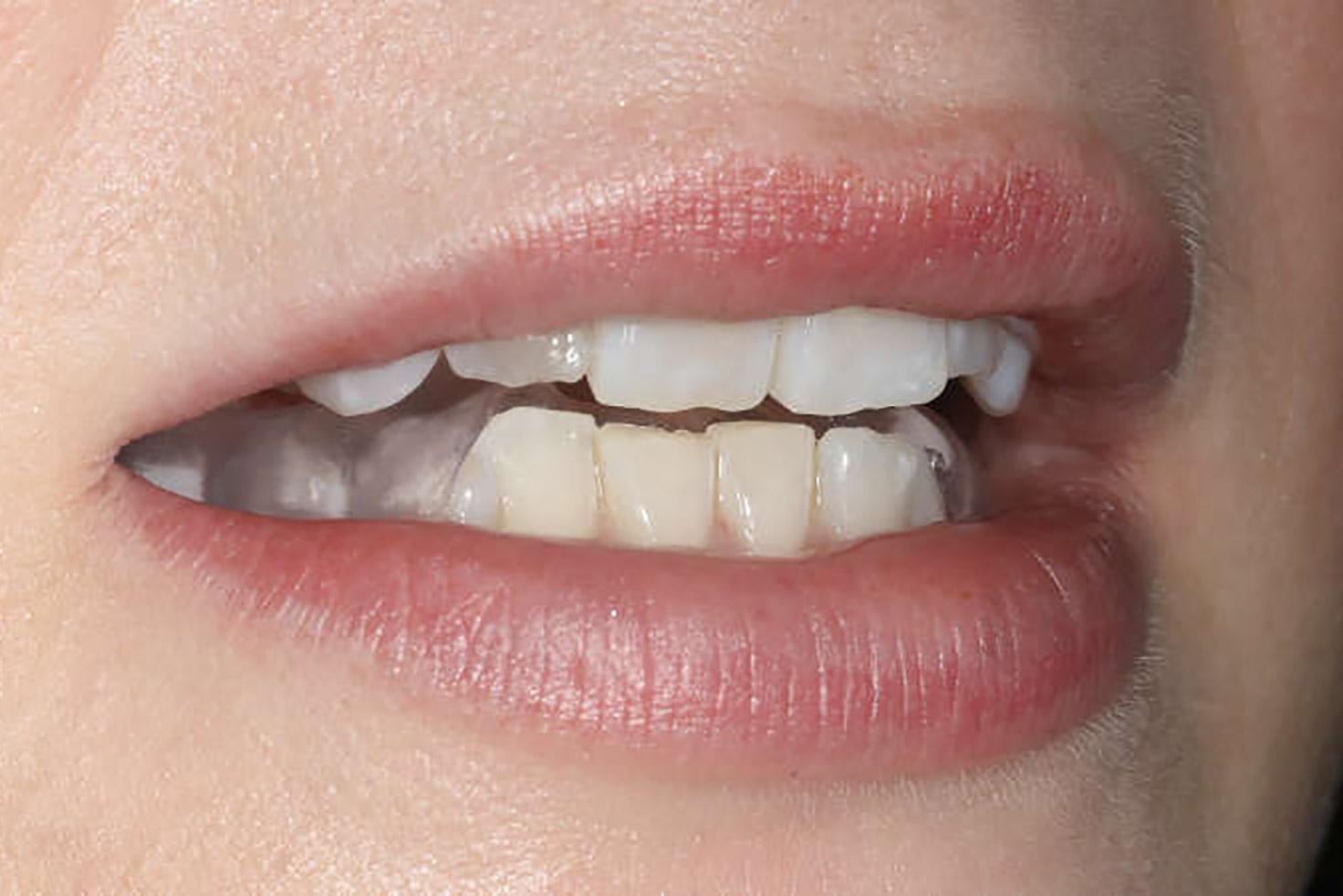 Zahnapparat